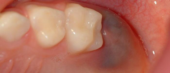 Quistes Dentales: tipos y tratamiento - Cuidado Dental