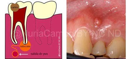 Pulpa Dental Infecctada