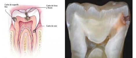 Caries Dental, Inflamación Dental