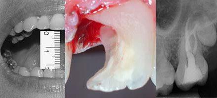 Dificutad en Endodoncia
